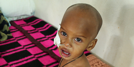 A one-year-old malnourished child at a hospital in Ethiopia